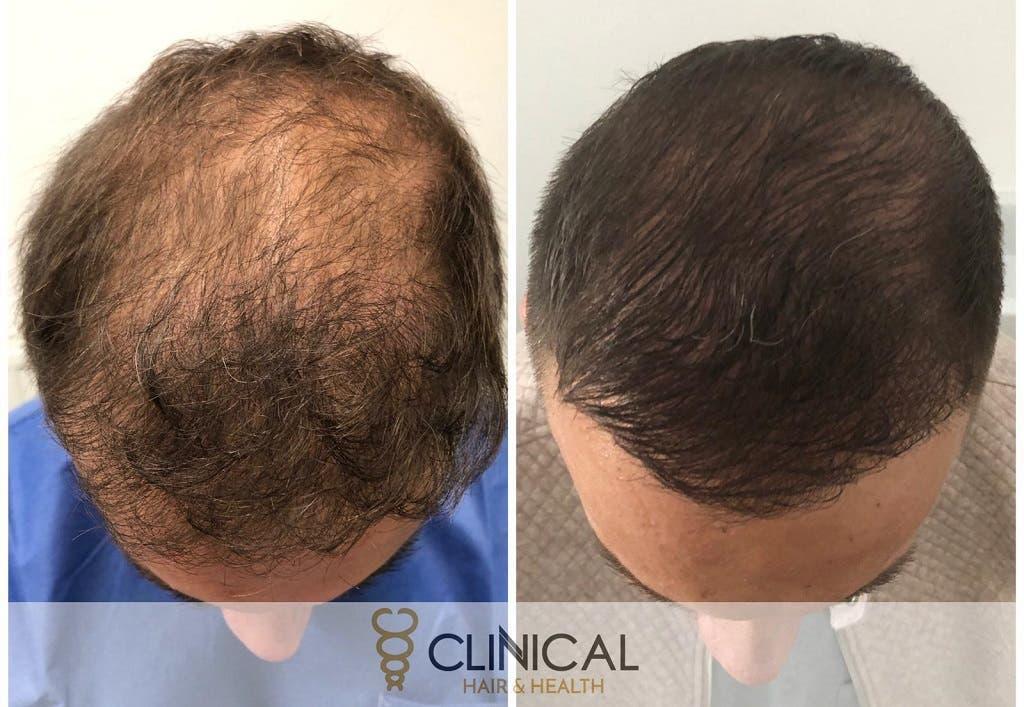 Transplantace vlasů krok za krokem